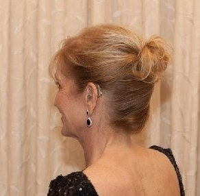 Marilyn shows off her Oticon Agil Pro hearing aids at her daughter's wedding. She has worn them since 2004.