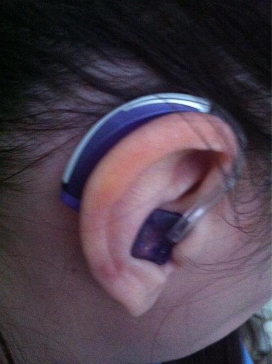 Sarah sent me her ear photo via Twitter. I think this is one of my favorite tweets ever. Don't you agree?
