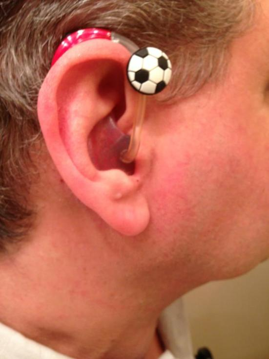 Dan wears a soccer ball Tube Rider on a red glitter silicone shell earmold, along with a Ferrari Red ReSound Verso 988 hearing aid.