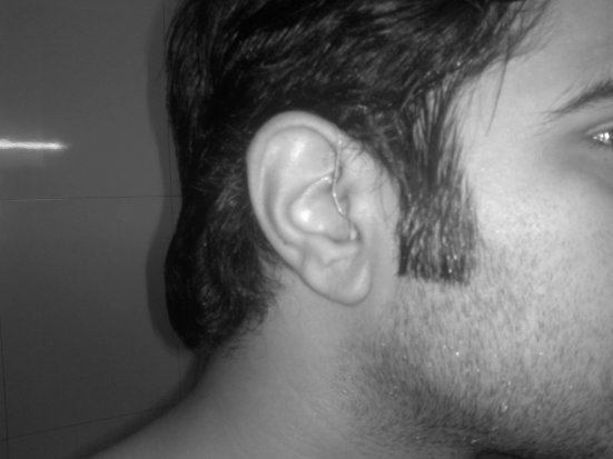 "Hiren Madan, from Delhi,India, has worn hearing aids for 19 years. In the photo, he shows off his Widex Clear330 hearing aids. Hiren writes, ""I love your blog and it is great place to unite people like us on one platform."""