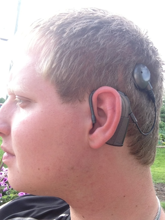 Evan Race knows how to strike a pose with his cochlear implant. Bionic ears are so cool.