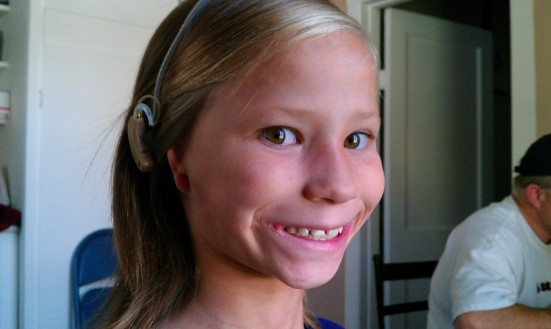 Ellie, who was born without ears, wears devices that help her to hear.