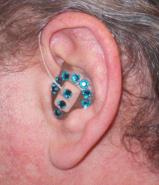 Dan dressed up his hearing aids with turquoise rhinestones.