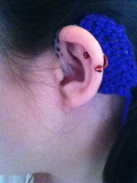 """As promised, here is the photo of my hearing aid,"" writes the blogger known as justthehalfdeafgirl. ""I made a crocheted cover for it, which is slipped over it in the photo. I clip it to my shirt. The cover makes it look larger than it is, and it doesn't help that my ears are tiny! (Yes, I did paint polka-dots on my tube.)"""