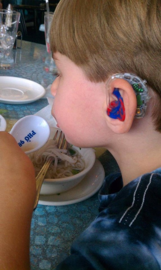 Young Sawyer enjoys dinner while showing off his cool bionic-looking Phonak Versatas and Spidey earmolds. Now that's what I call eating with style!
