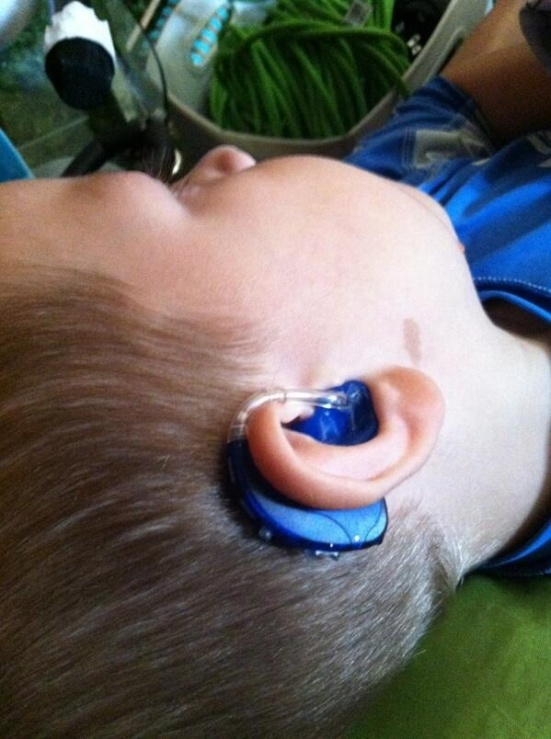 Lipreading Mom just loves when kids sport colorful hearing aids. Royal blue, anyone?