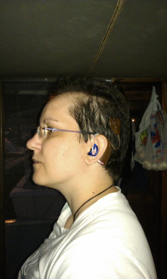 Vivie Moraiti continues the royal blue ear mold trend with her Cochlear Freedom implant. She's worn it for five years.