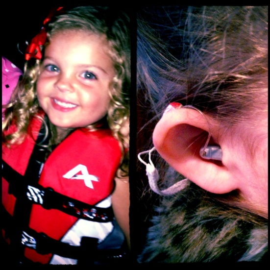 Young Sadie Rose received her first hearing aids at six weeks of age. Now at age three, her hair is so long that her mom shared two photos to show off her hearing aid. Well, Lipreading Mom thinks Sadie Rose is just darling!