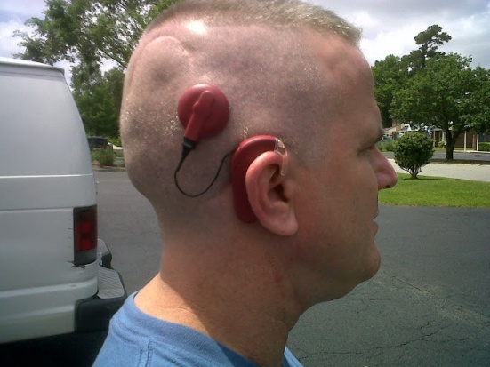 Adam Fitzgerald shows off his cochlear implant and his faith in the Bible verse he emailed me along with his photo: