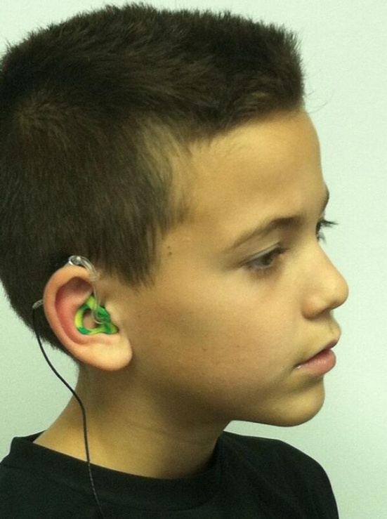 LOVE this 10-year-old boy's John Deere ear molds. Don't you?