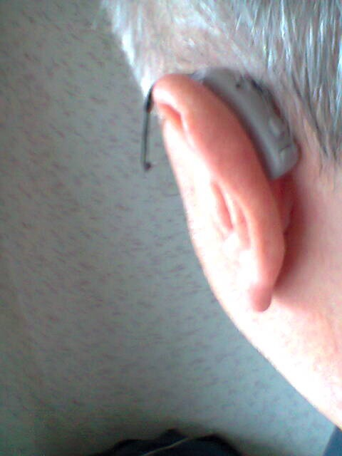 Ian Scott shows off one of his hearing aids. He wears the Siemens Impact Pro L.