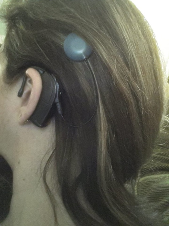 Stephanie Georgel shows off her cochlear implant and gorgeous thick hair. Beautiful!
