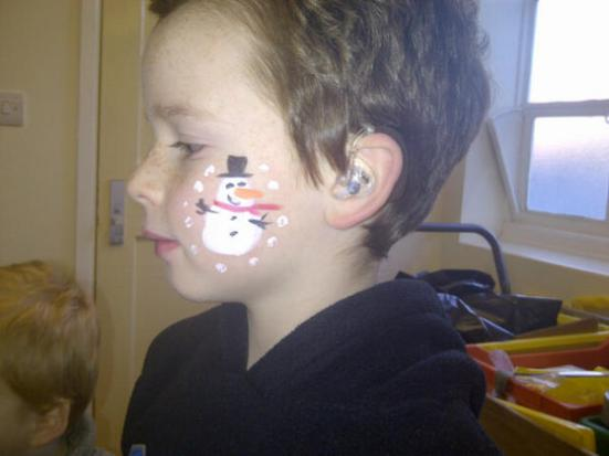 Niall, 7, has been wearing hearing aids since the age of 16 months old. His ear molds feature a Batman design. Cute Snowman, too!