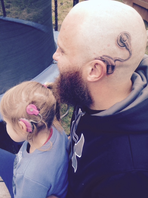 Charlotte received a cochlear implant, and her dad, Alistair, got a matching tattoo. This photo went viral on Facebook within 24 hours. See the related story at LipreadingMom.com.